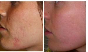 Cicatrices acne 1