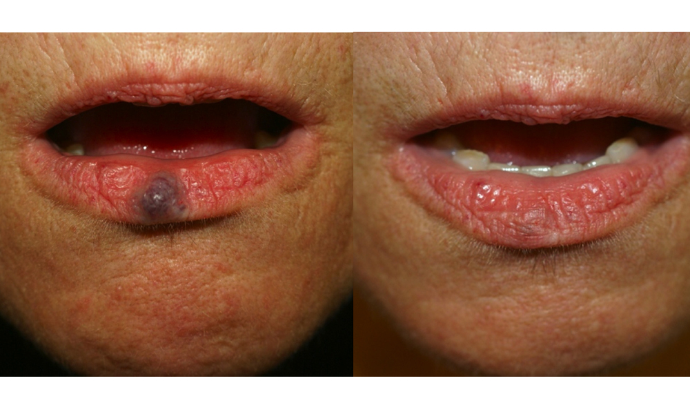 Nodular melanoma | DermNet New Zealand